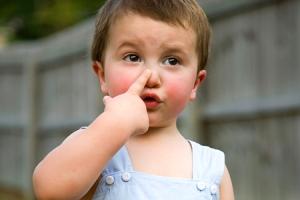 Носова кровотеча у дитини